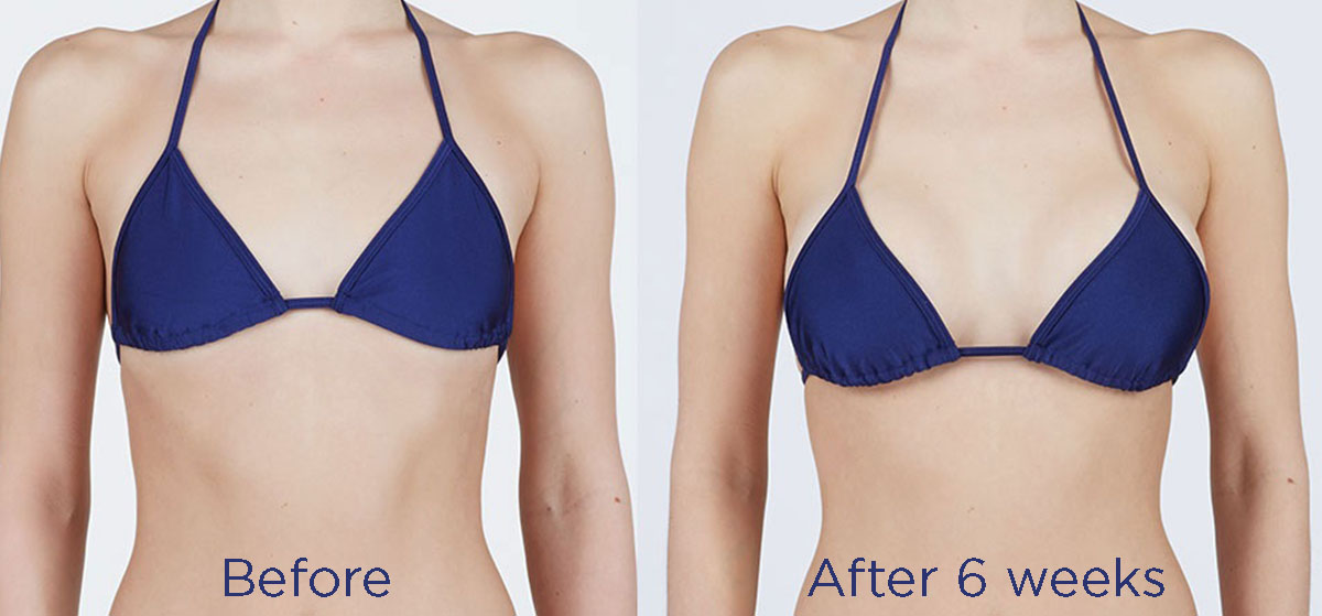 Breast procedure before and after