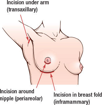 Breast incision illustration